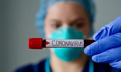Ponad 87 tys. zakażonych koronawirusem, 2 432 ofiary śmiertelne