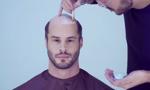 Start-up uratuje włosy na głowie