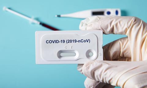 Czechy chcą zaoferować obywatelom przed świętami bezpłatne testy antygenowe